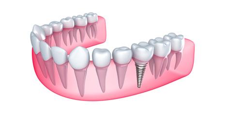 implanty1